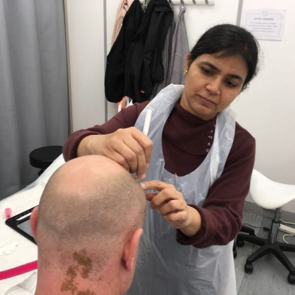 scalp micro-pigmentation in india
