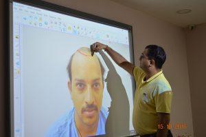 hair transplant training center in india