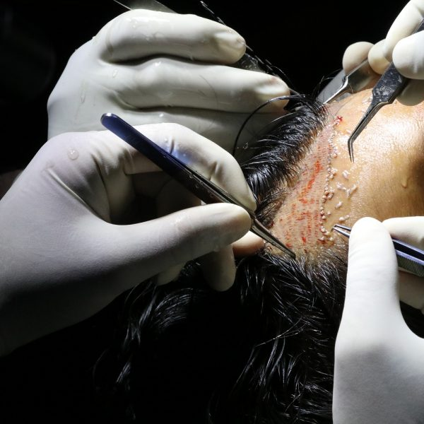 best hair transplant training course